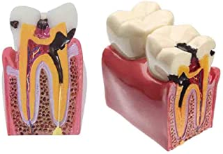 Dental Caries Tooth Model,Caries Comparison Oral Teaching-Use Pathology Teeth Model for Kids